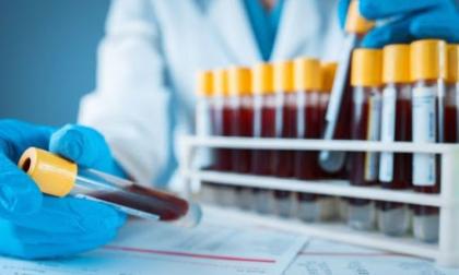Test sierologici, il Tar annulla il contratto fra DiaSorin e San Matteo di Pavia