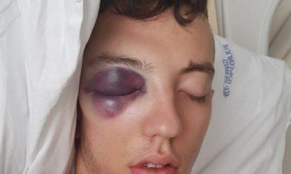 Gravemente ferito ad una festa, dopo 7 mesi di ospedale vuole sapere cosa è successo